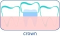 Dental crown in Hungary